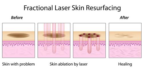 fractionated-laser-resurfacing-drawing