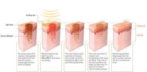 ihplus-IPL-Skin-Laser