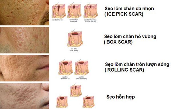 phân loại sẹo rỗ