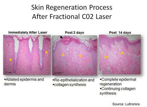 laser co2 recover