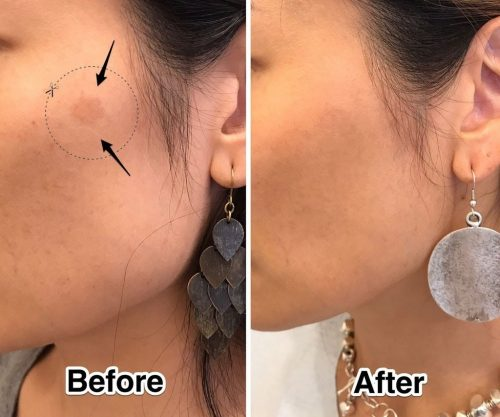 pico-q-laser-before-and-after