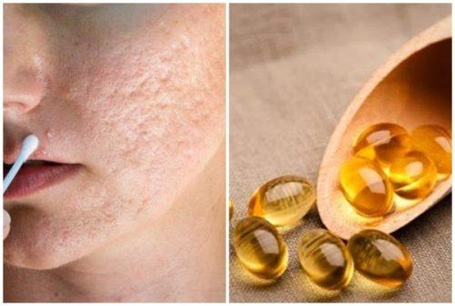 vitamin e trị sẹo rỗ 2