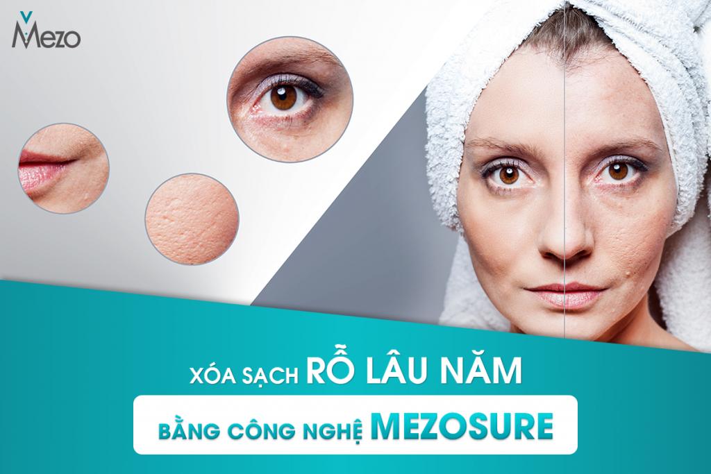 tri-seo-ro-lau-nam-doctor-mezo