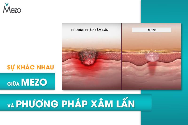 su-khac-biet-giua-Mezo-va-phuong-phap-xam-lan
