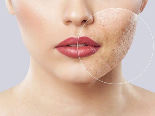 Các cách điều trị sẹo rỗ hiệu quả bạn cần biết