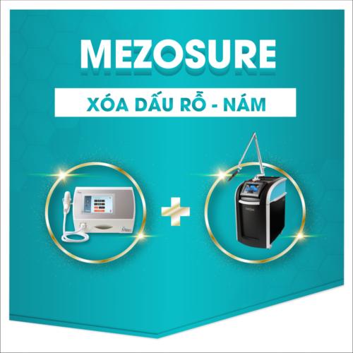 Điều trị sẹo rỗ bằng phương pháp Mezosure