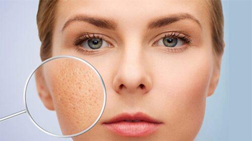 Vì sao nên điều trị rỗ mặt hay sẹo rỗ