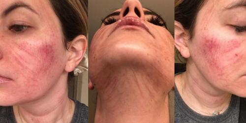 Hậu quả điều trị nám da mặt với mài da vi điểm